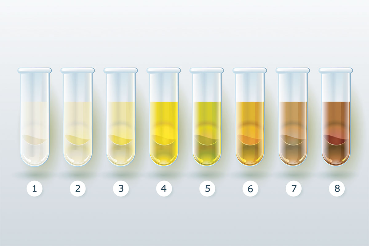 Scale of urine colors to measure hydration